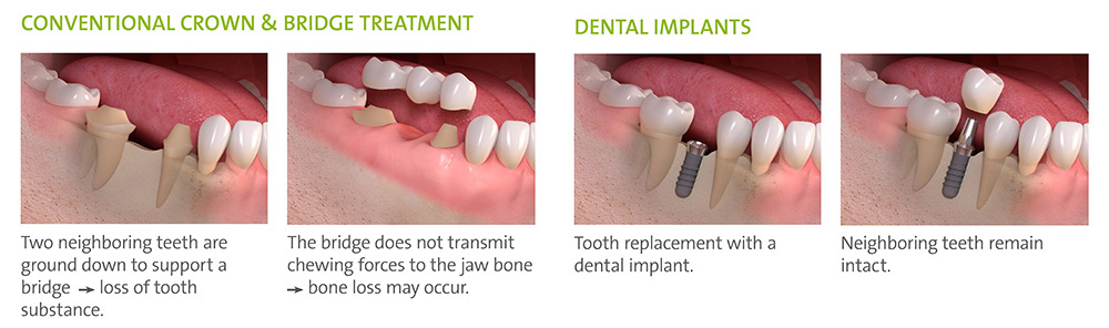 bridge_or_implant