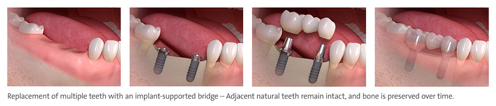 implant_supported_multi_tooth_2