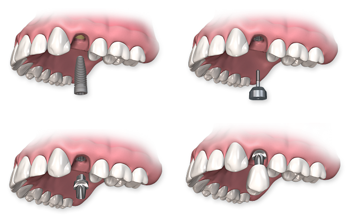 single-dental-implant-procedure